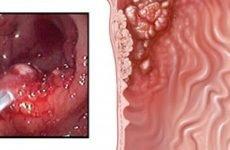Рак кардіального відділу шлунка: симптоми, лікування