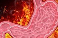 Печіння в шлунку: причини, лікування, профілактика