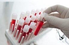 Печінкова проба крові: що це, особливості, розшифровка