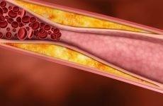 Як підвищити хороший холестерин: ефективні методи