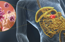Гострий гастроентерит: симптоми і лікування, діагностика