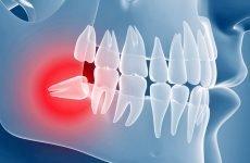 Видалення ретинированного зуба мудрості: показання та протипоказання