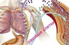 Онкомаркери шлунково-кишкового тракту: як проводиться