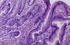 Метаплазія шлунка: лікування, дієта, симптоми і прогноз
