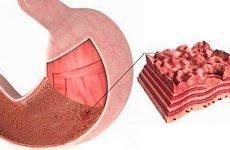 Що приймати при ерозії шлунка: препарати, народні засоби