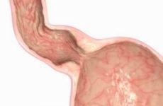 Сфінктер шлунка: види, симптоматика, лікування
