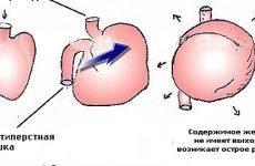 Гостре розширення шлунка: прояви, ускладнення