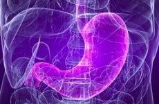 Атонія шлунка: симптоми, лікування, причини і прогноз