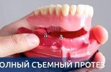 Повні знімні протези: технологія та етапи виготовлення