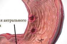 Ерозії антрального відділу шлунка: лікування, дієта, симптоми