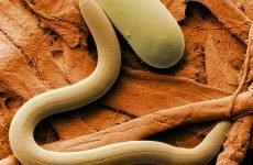 Як визначити наявність паразитів в організмі