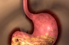 Гастродуоденіт та езофагіт: лікування, симптоми, причини