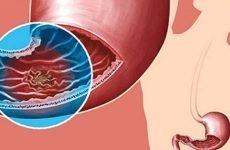 Скільки живуть з раком шлунка: ступеня розвитку