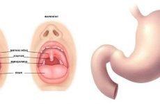 Фарингіт і шлунок: причини, лікування, харчування