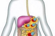 Гастроентерит: симптоми, лікування, профілактика