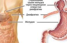 Грижа діафрагми шлунка: симптоми, як лікувати