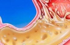 Соляна кислота в шлунку: функції, причини підвищення