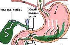 Жовч в шлунку: лікування, причини, симптоми і дієта