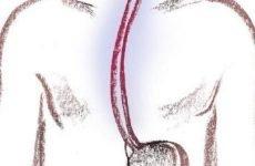 Ерозивний рефлюкс-езофагіт: дієта, симптоми, лікування