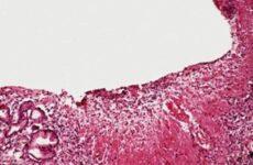 Гастрит з гіперплазією: лікування, харчування, профілактика