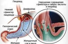 Чому з'являється рефлюкс гастрит і що потрібно робити для його лікування?