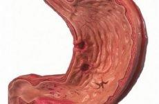 Чим небезпечна гостра виразка шлунка і як її правильно лікувати?