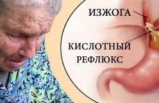 Печія при гастриті: лікування, причини, перша допомога