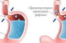 Гастроезофагеальна рефлюксна хвороба: лікування, симптоми, діагностика