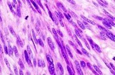Гастроінтестинальна стромальная пухлина шлунка: прогноз