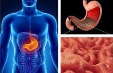 Які основні симптоми дифузного гастриту та методика його лікування