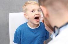 Ангіна без температури у дитини: особливості діагностики та лікування ангіни бестемпературной