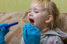 Ангіна у дитини 2-3 років: симптоми, особливості діагностики та лікування дитячого тонзиліту