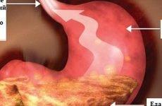Дуодено-гастральный рефлюкс: симптоми і лікування, дієта, ступеня