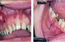 Гранулематозний періодонтит: причини, методи діагностики та лікування