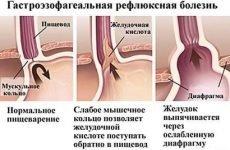 Печія після їжі: причини після кожного прийому їжі, чому виникає, лікування