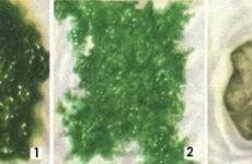 Зелений стілець у дорослого: причини калу темно-зеленого кольору у людини, лікування