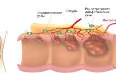 Скирр шлунка: причини, діагностика, як лікувати