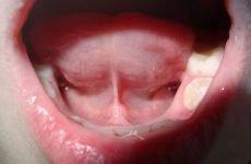 Болить вуздечка під язиком: причини і методи лікування