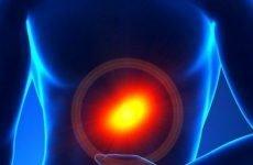Підвищена кислотність шлунка: симптоми і лікування, дієта, причини