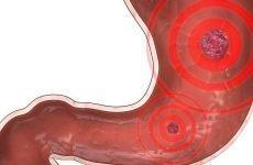 Пептична виразка шлунка: лікування, діагностика