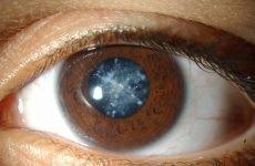 Народні засоби для поліпшення зору: ефективні способи