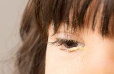 Що робити, якщо у дитини гнояться очі? Симптоматика та лікування