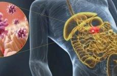 Гастроентерит: симптоми і лікування у дорослих, дієта