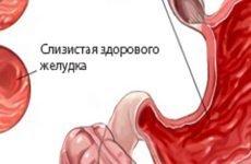 Дифузний гастрит: лікування, харчування, симптоми