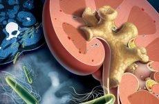 Коралоподібні камені в нирках: причини і лікування