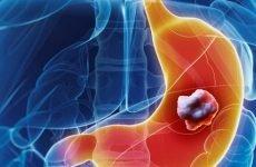 Недиференційований рак шлунка: ступеня, прогноз