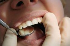 Чому болять всі зуби одночасно: причини та методи усунення болю