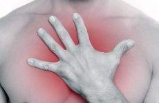 Болі в грудях через шлунка: чому виникають, лікування
