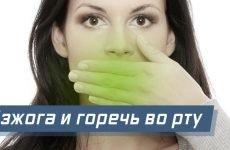 Печія і гіркота в роті: причини, діагностика та лікування