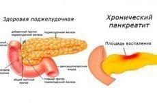 Дієта при хронічному панкреатиті: меню харчування для підшлункової залози, що можна їсти
